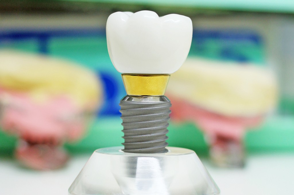 implant at dr smile singapore