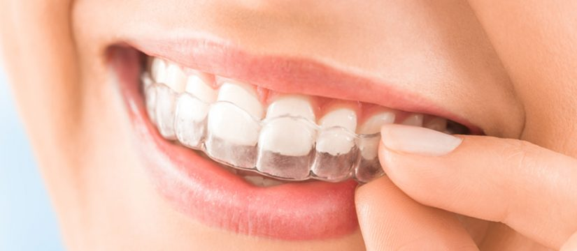 Modern Ways To Align Your Teeth Cover